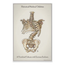 Scoliosis Spine Poster