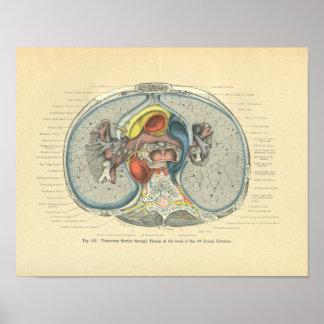 Sección representativa de la anatomía de Frohse de Poster
