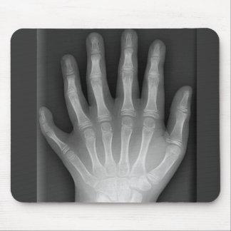 Seis manos digitadas, rareza médica, radiografía tapetes de ratón