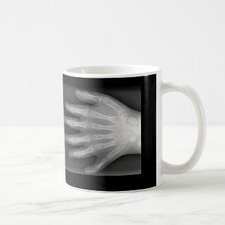 Seis manos digitadas, rareza médica, radiografía taza de café