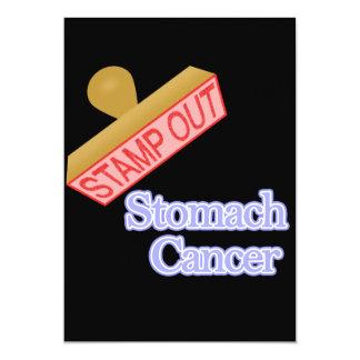 Selle hacia fuera al cáncer de estómago comunicado personal