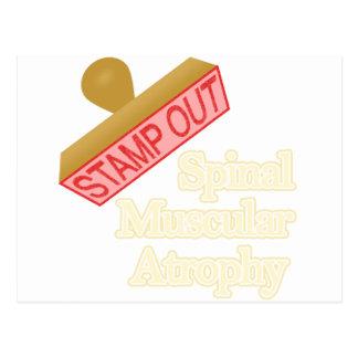 Selle hacia fuera la atrofia muscular espinal tarjeta postal