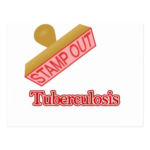 Selle hacia fuera la tuberculosis tarjeta postal