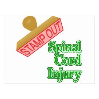 Selle hacia fuera lesión de la médula espinal - ve tarjetas postales