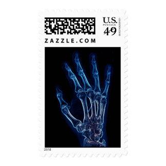 Sello azul de la radiografía de la mano