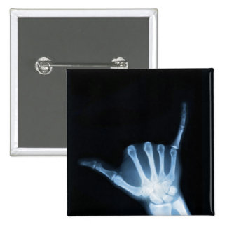 Shaka Sign X-Ray (Hang Loose) 2 Inch Square Button