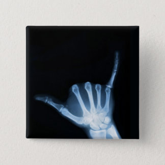 Shaka Sign X-Ray (Hang Loose) Button