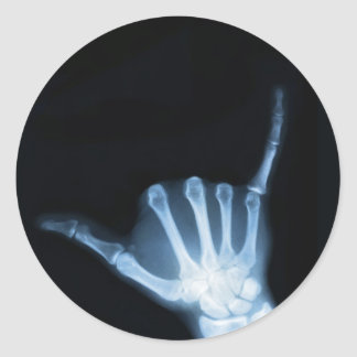 Shaka Sign X-Ray (Hang Loose) Classic Round Sticker