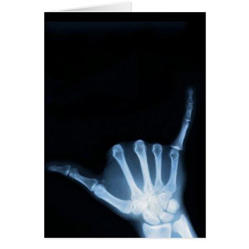 Shaka Sign X-Ray (Hang Loose) Greeting Card