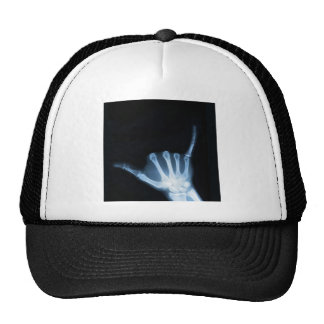 Shaka Sign X-Ray (Hang Loose) Trucker Hats