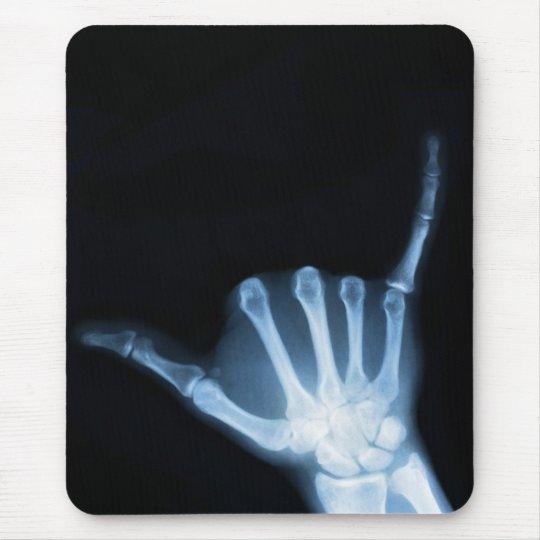 Shaka Sign X-Ray (Hang Loose) Mouse Pad