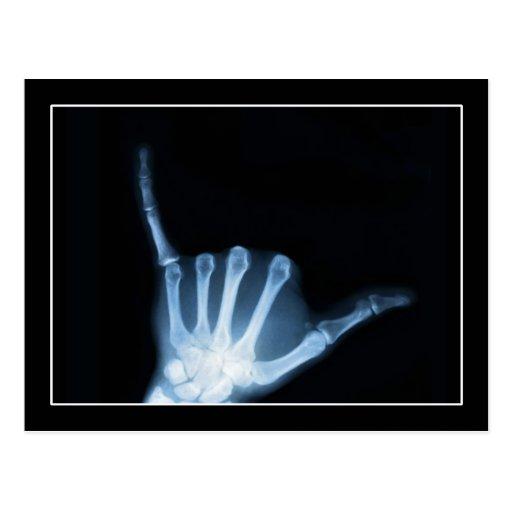 Shaka Sign X-Ray (Hang Loose) Post Card
