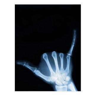Shaka Sign X-Ray (Hang Loose) Postcard