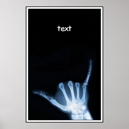 Shaka Sign X-Ray (Hang Loose) Poster