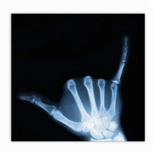 Shaka Sign X Ray Hang Loose Statuette Zazzle