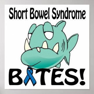 Short Bowel Syndrome BITES Print