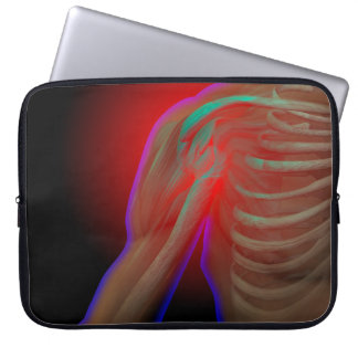 Shoulder Pain Computer Sleeve
