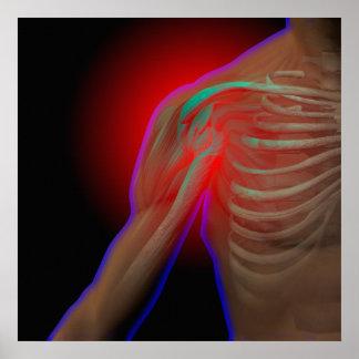 Shoulder pain poster