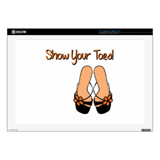 """Show Your Toes Skin For 17"""" Laptop"""