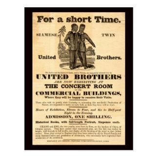 Siamese Twins Vintage Ad Postcard