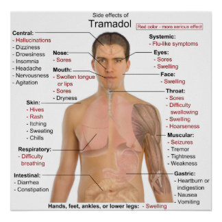 Side Effects Chart for Tramadol Hydrochloride Poster
