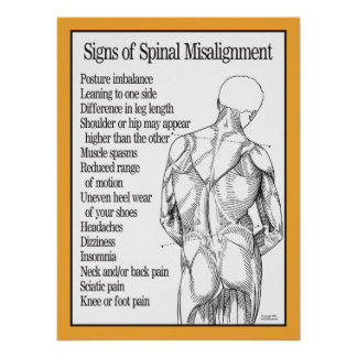 Signs of Spinal Misalignment Poster