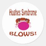 Síndrome de Hughes Etiquetas Redondas