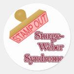 Síndrome de Sturge-Weber Etiqueta