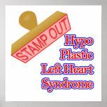 Síndrome izquierdo plástico del corazón del Hypo Impresiones