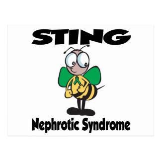 Síndrome nefrótico de STING Postal