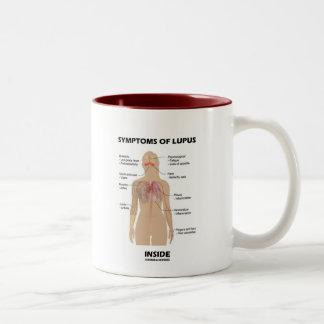 Síntomas del interior del lupus (desorden autoinmu tazas de café