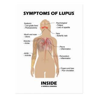 Síntomas del interior del lupus (desorden postal