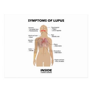 Síntomas del interior del lupus (desorden postales