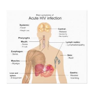 Síntomas principales de la infección VIH aguda Impresion En Lona