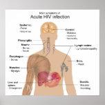 Síntomas principales de la infección VIH aguda Poster