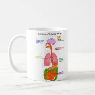 Síntomas principales de un diagrama de la taza de café