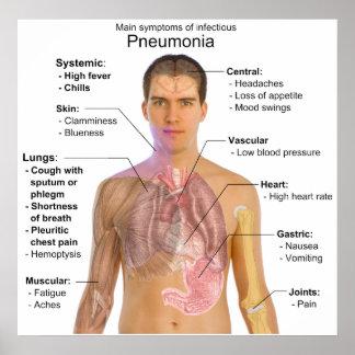 Síntomas principales del diagrama infeccioso de la poster
