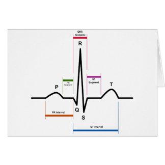 Sinus Rhythm in an Electrocardiogram ECG Diagram Card