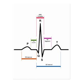 Sinus Rhythm in an Electrocardiogram ECG Diagram Postcard