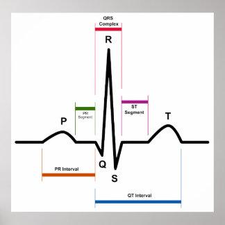 Sinus Rhythm in an Electrocardiogram ECG Diagram Poster