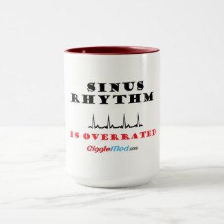 Sinus Rhythm is Overrated Mug