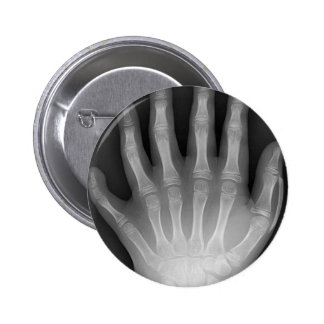 Six Fingered Hand, Medical Rarity, X-Ray Button