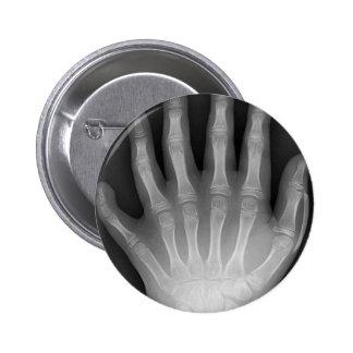 Six Fingered Hand, Medical Rarity, X-Ray Pin