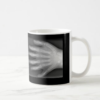 Six Fingered Hand, Medical Rarity, X-Ray Coffee Mug