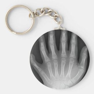 Six Fingered Hand, Medical Rarity, X-Ray Keychain