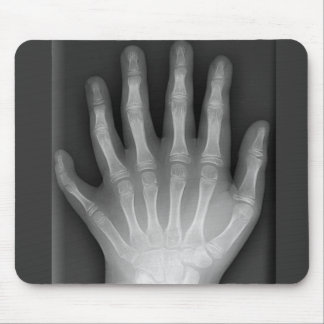 Six Fingered Hand, Medical Rarity, X-Ray Mouse Pad
