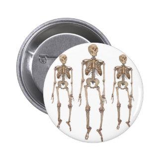 Skeleton Pins