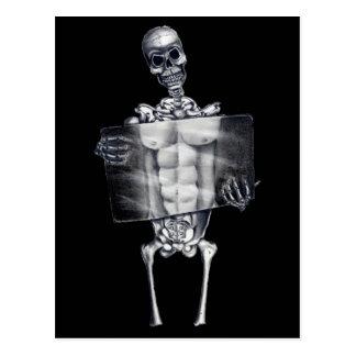 Skeleton Chest Xray Black Postcard