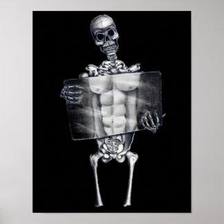 Skeleton Chest Xray Posters