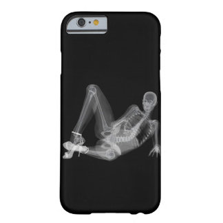 Skeleton woman sexy radiography barely there iPhone 6 case